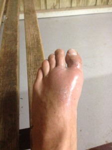 To si zrovna na začátku dovolené při běhaní zlomil palec